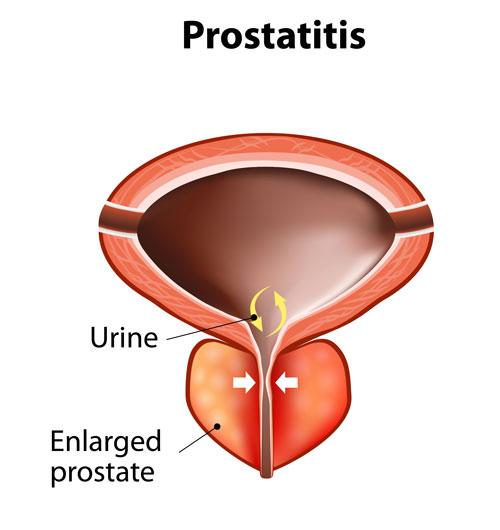Prostatis