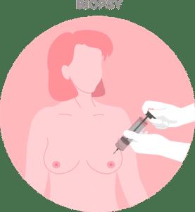 Breast Cancer diagnosis using biopsy