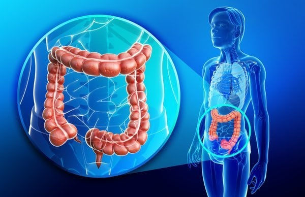 Colon Cancer in a human body