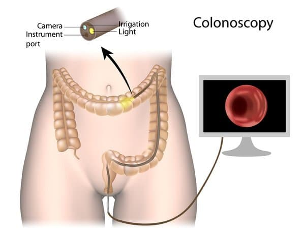 Colon Cancer diagnosis using scope